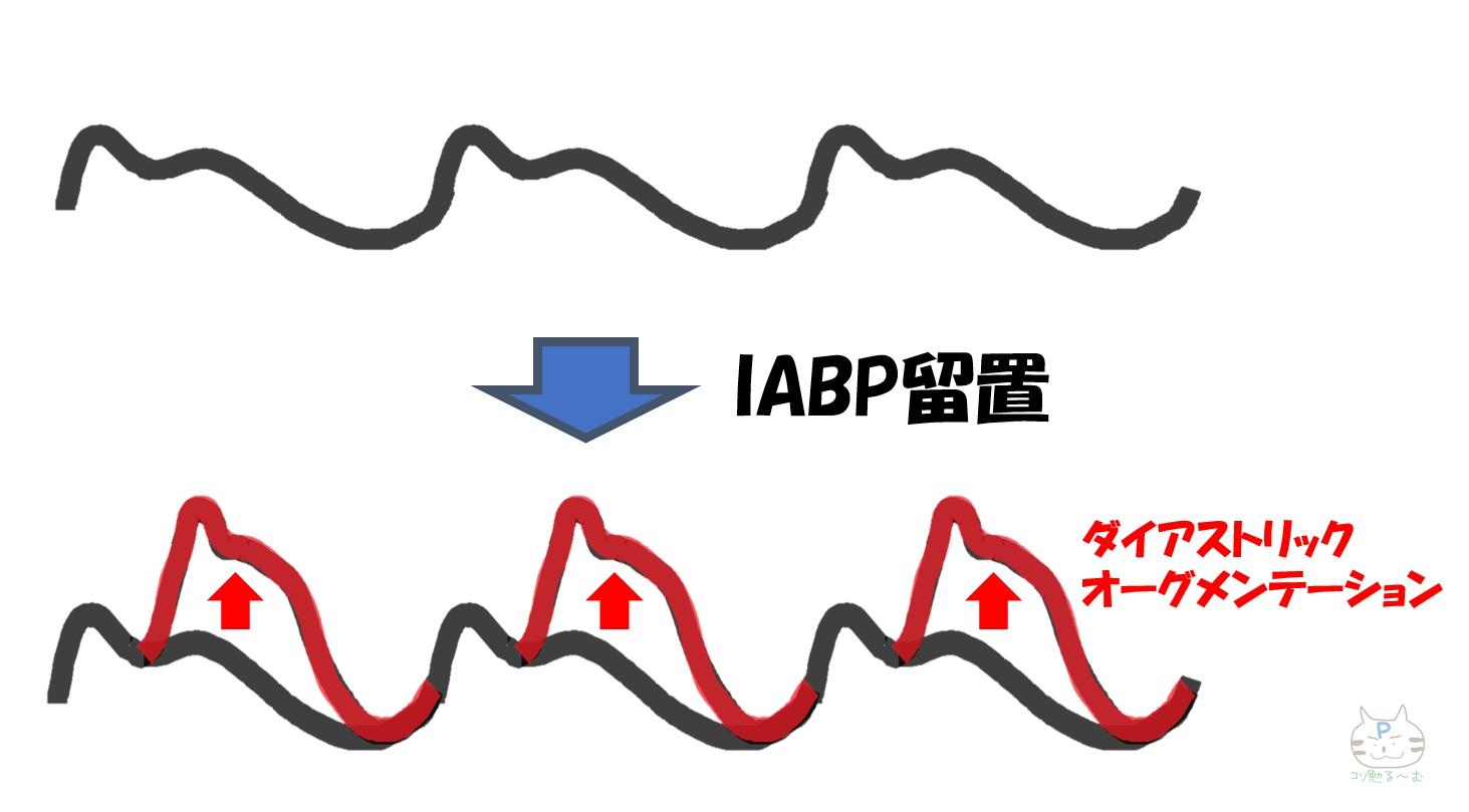 IABP ダイアストリックオーグメンテーション ぷーオリジナル
